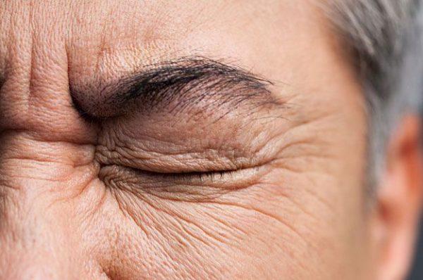 Cách phòng ngừa bệnh khô mắt ở người cao tuổi