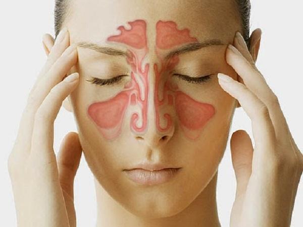 Nguyên nhân gây Bệnh viêm xoang và cách chữa trị