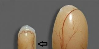Bệnh teo tinh hoàn ở nam giới: Nguyên nhân, cách phòng ngừa