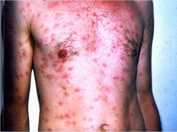 Những dấu hiệu nhận biết bệnh giang mai và cách điều trị