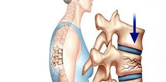Tìm hiểu về bệnh loãng xương