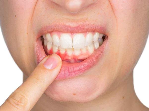 Nguyên nhân và cách khắc phục tình trạng chảy máu chân răng