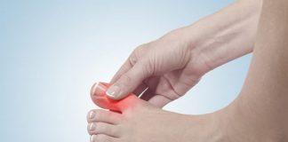 Bệnh Gout: Nguyên nhân, triệu chứng và chế độ dinh dưỡng