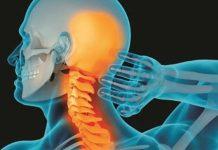 Thoái hóa đốt sống cổ: Nguyên nhân, triệu chứng và chẩn đoán