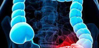 Ung thư đại tràng: Nguyên nhân, triệu chứng và chẩn đoán