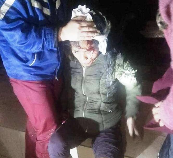 Người dân bị thương vì lốc xoáy